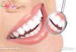 عارضه های سفید کردن دندان ها