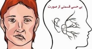 سکته مغزی - بی حسی قسمتی از صورت