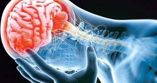 سکته مغزی در طب سنتی