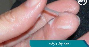 ترشحات طبیعی و غیرطبیعی واژن