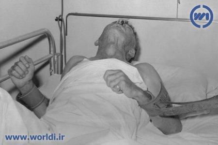 یک بیمار هار در سال ۱۹۵۹