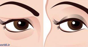 عمل جراحی زیباسازی پلک