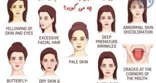رابطه چهره به سلامتی