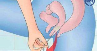گذاشتن سیر در واژن